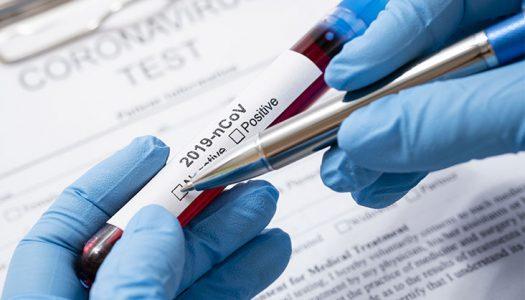 Ya es posible hacerse el test del coronavirus en Estepona
